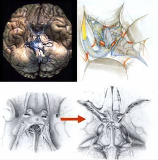 La aracnoides de la base del cerebro respetando los nervios y vasos