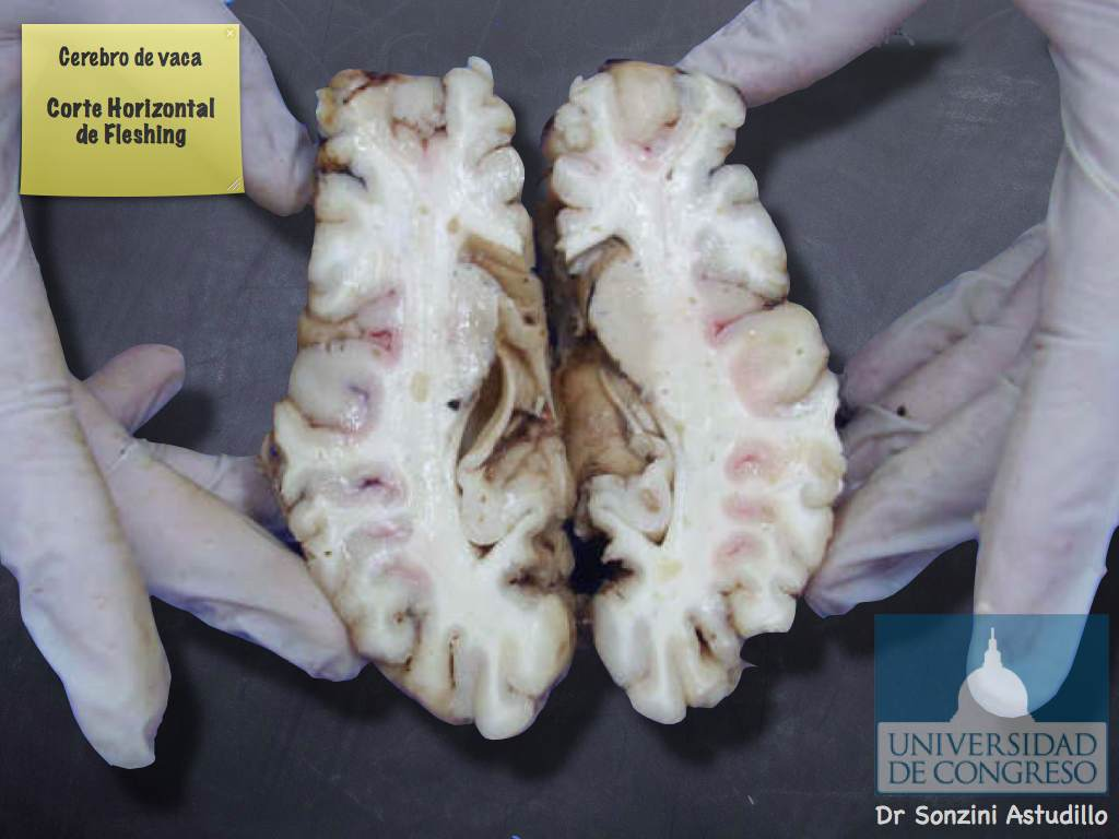 Cerebro - Corte de Fleshing