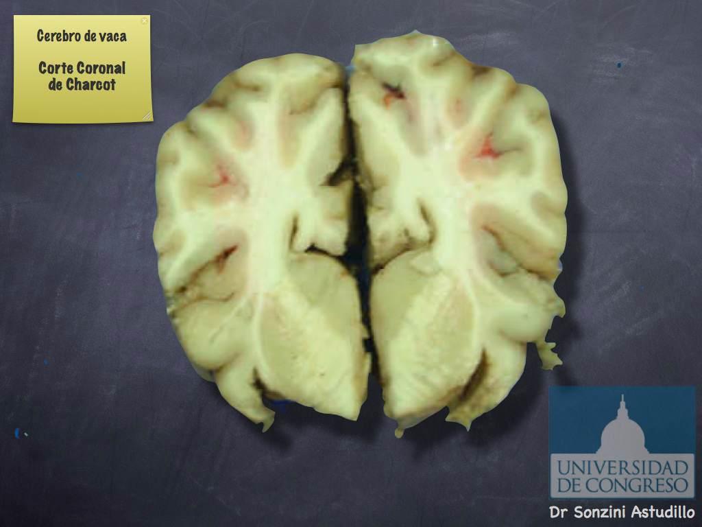 Cerebro - Corte de Charcot