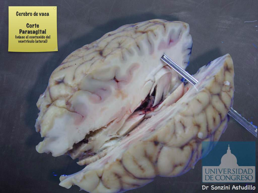 Cerebro - Ventrículo Lateral