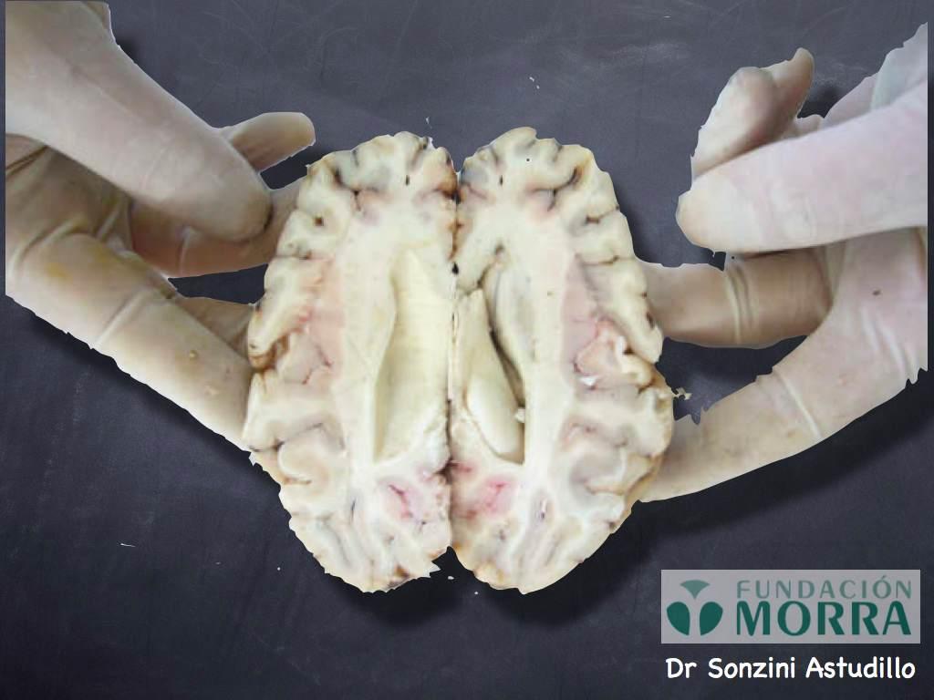 Cerebro de Vaca - Corte de Viussens