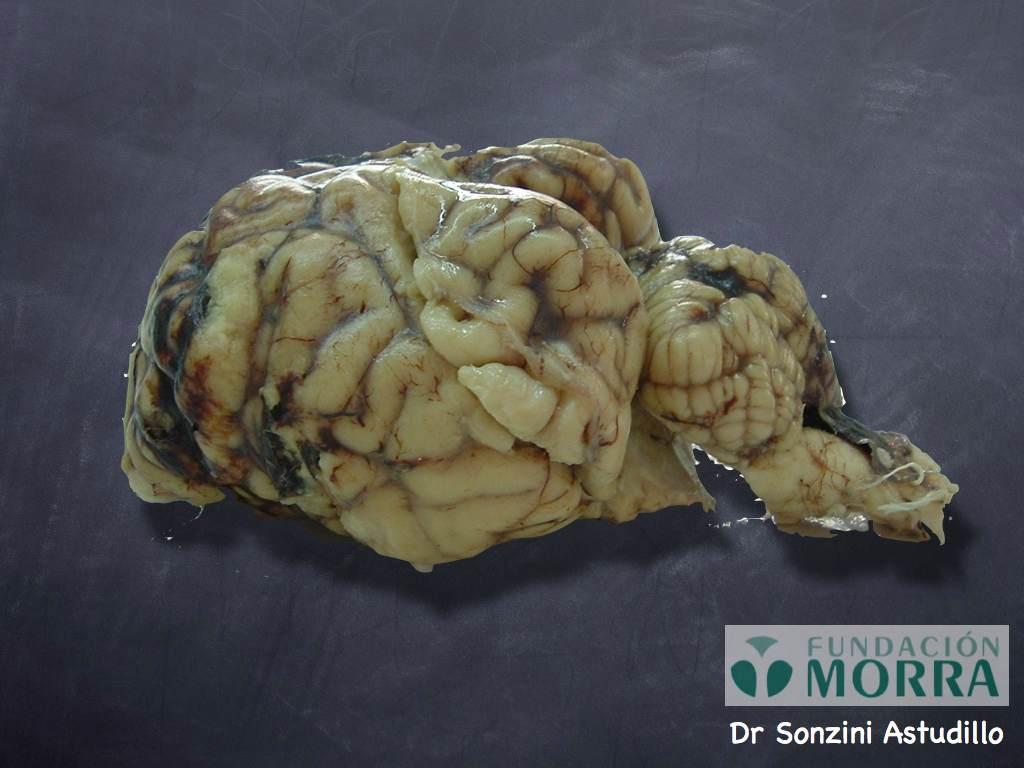 disecpsiquiatria011